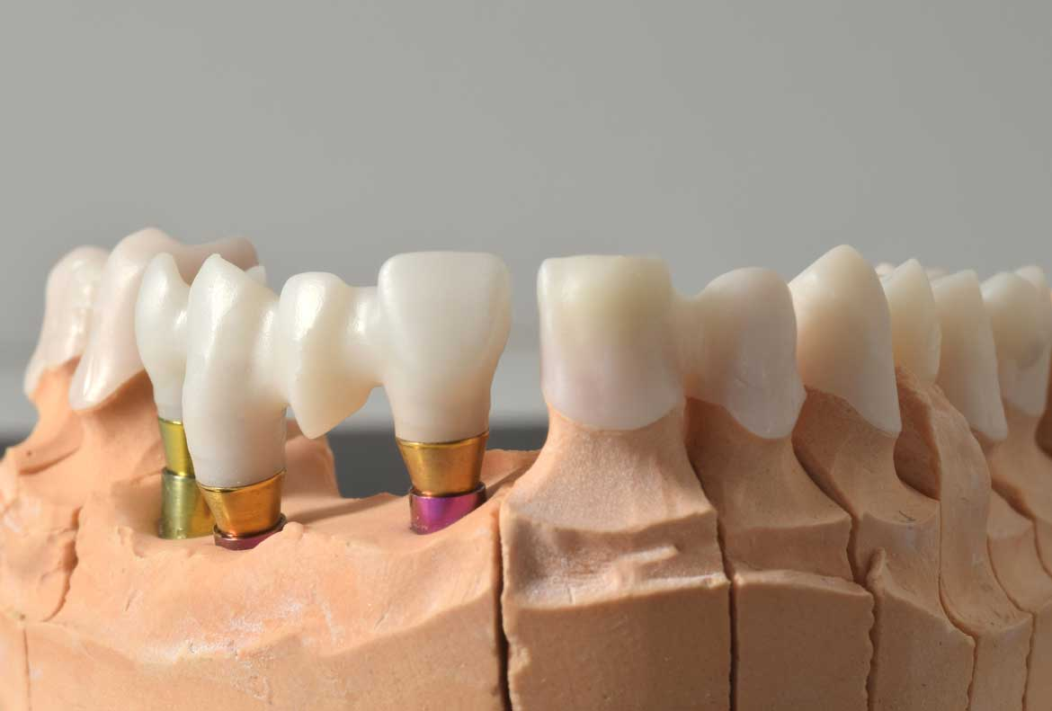 Zirconio-Ceramica_integradental