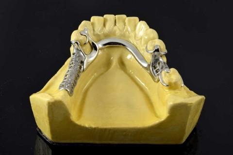 esqueletico_protesis_integradental