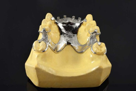 esqueletico_protesis_integradental2