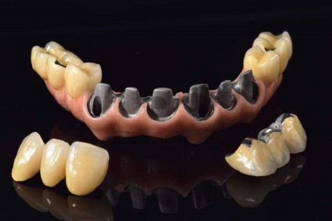 implantes_integradental3