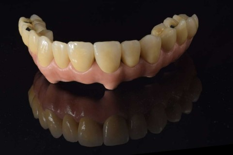 implantes_integradental4