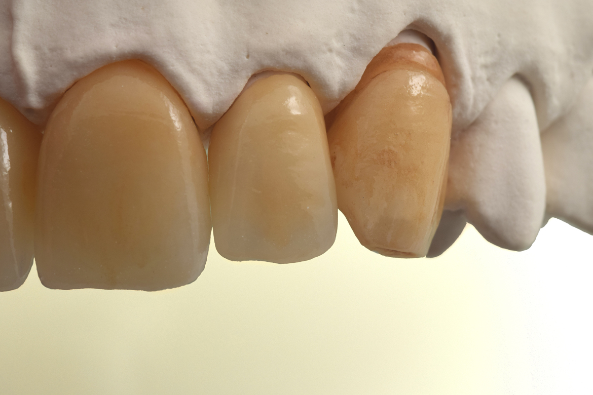 metal_ceramica_integradental